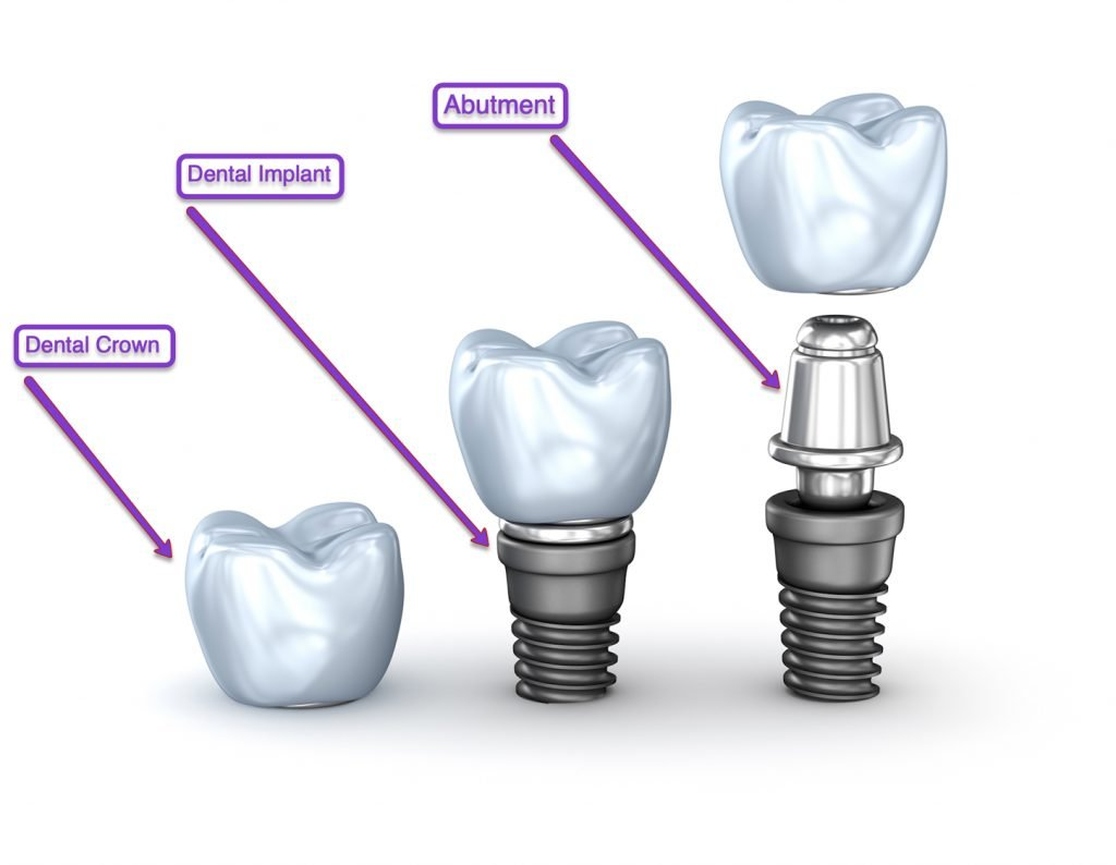 Dental Implants Diagram - Idaho Falls Dental