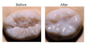 before and after dental sealants - idaho falls dental sealants