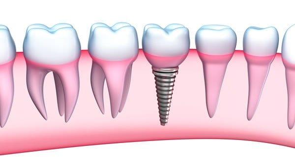 Biocompatible Dentistry