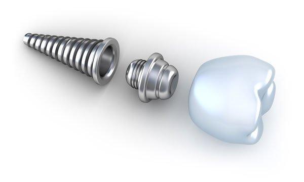 Dental Implant - dentist idaho falls