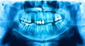 Holistic Dentistry in Idaho Falls