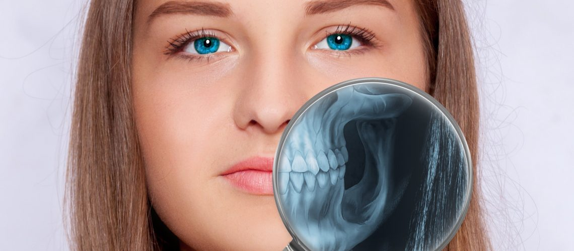 3D Scan in Dentristry - dentist in idaho falls