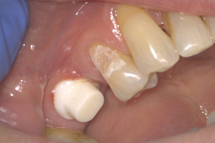 Ceramic Implants - idaho falls resin tooth fillings
