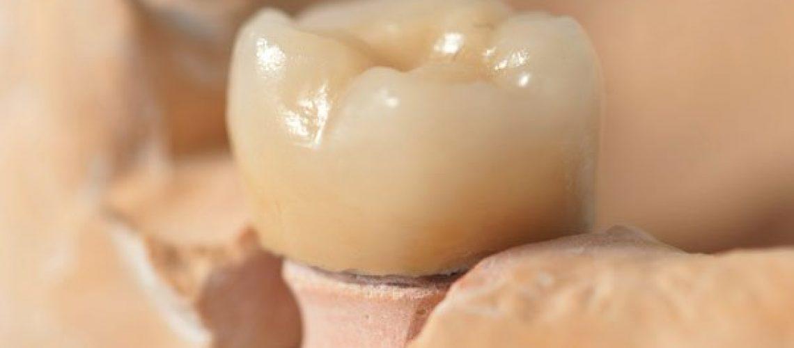 Tooth Model - dentists idaho falls