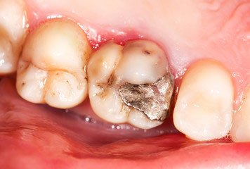 Mercury Filling - idaho falls dental fillings