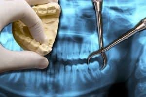 Wisdom Teeth Extraction - Idaho Falls Dental